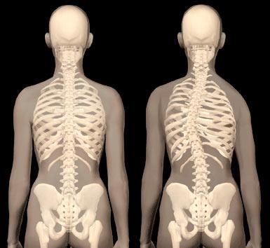 Kręgosłup normalny i skoliodowany